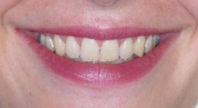 Figure 1 : un beau sourire